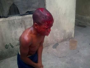 Wow! Young boy left a bloody mess after brutal beating by his guardian (photos)